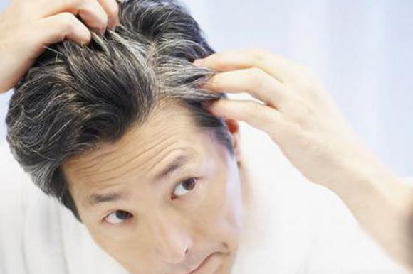 少年白头是怎么回事?容易长白头发的原因有哪些?