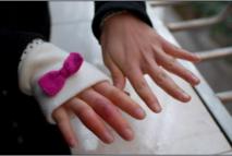 冻疮如何治疗和预防 长了冻疮怎么办?