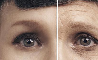 各类维生素对糖尿病眼病的防治非常有好处
