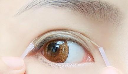 专家:双眼皮贴可使皮肤失去弹性