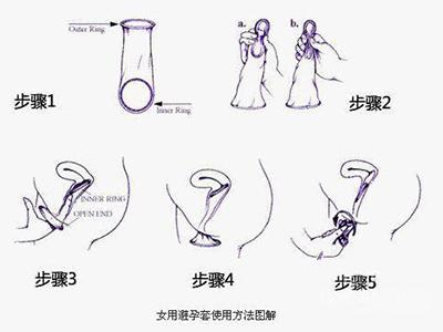 女性避孕套的使用方法(图解)