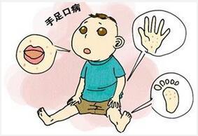 儿童手足口病的日常预防和中医小偏方